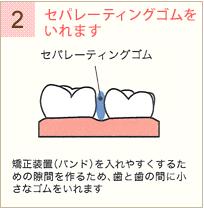 歯と顎を移動させるための方法